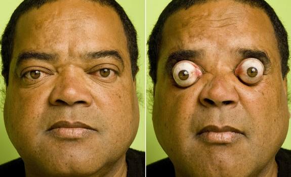 1. Sunkiausias krovinys tempiamas akimis Tikėkite arba ne, bet šis vyras 2009 metais savo akių duobutėmis patempė 411 kg […]