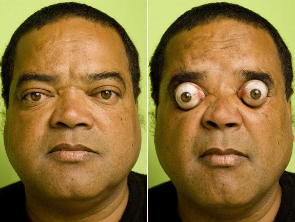 Gineso rekordas akys