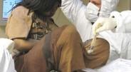 Dėmesio. Nuotraukos žemiau gali šokiruoti. Šiose nuotraukose yra ne mergaitė gydoma daktarų, o mumija. Ši mumija yra 15 metų amžiaus […]